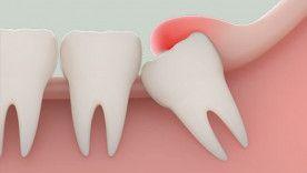 Răng khôn và những điều bạn nên biết